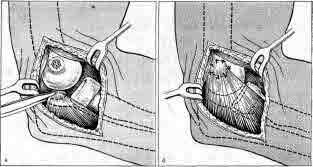 Переломы мыщелков плечевой кости