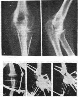 Посттравматические контрактуры локтевого сустава лабрадор суставы позвоночник