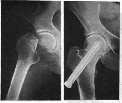 Аддукционные (варусные) переломы шейки бедра