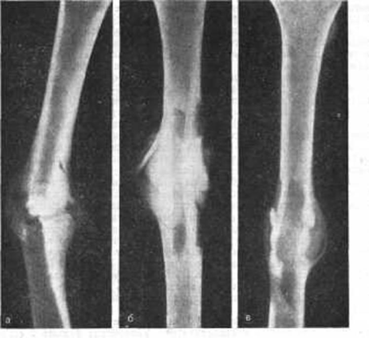 Мозоль костная фото