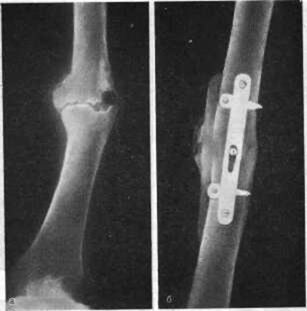 Несращение ложный сустав деформированный артроз тазобедренного сустава 2 степени