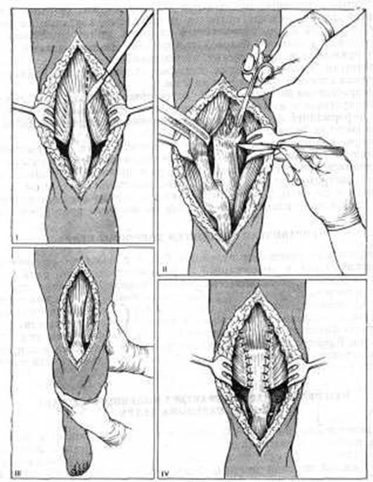 Массаж при контрактуре в коленном суставе