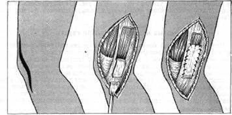 Связка Сухожилия