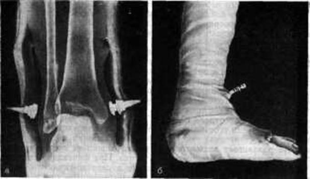 артродез голеностопного сустава при остеомиелите