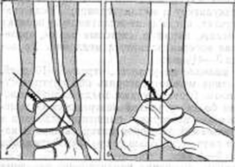 перелом лодыжки ложный сустав