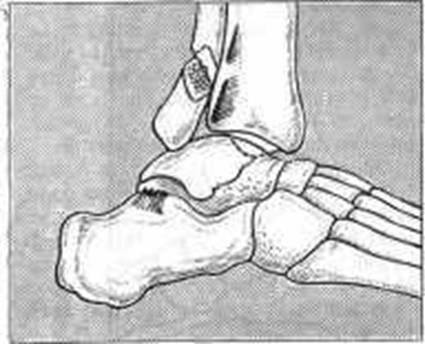 Оперативное лечение переломов лодыжек